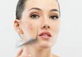 Прищі на вилицях у жінок: причини та особливості лікування