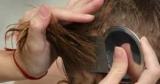 Як прибрати гнид з волосся: причини появи, аптечні препарати, народні методи, відвари, вичісування та інші ефективні способи